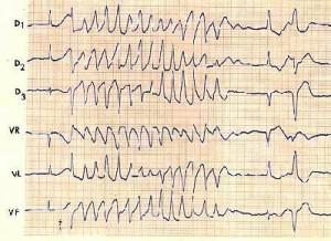 sindrome_qt_electrocardiograma2